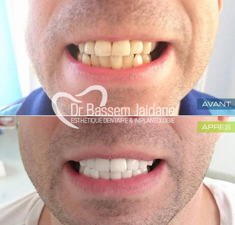 photos facettes dentaires tunisie   dr bassem jaidane